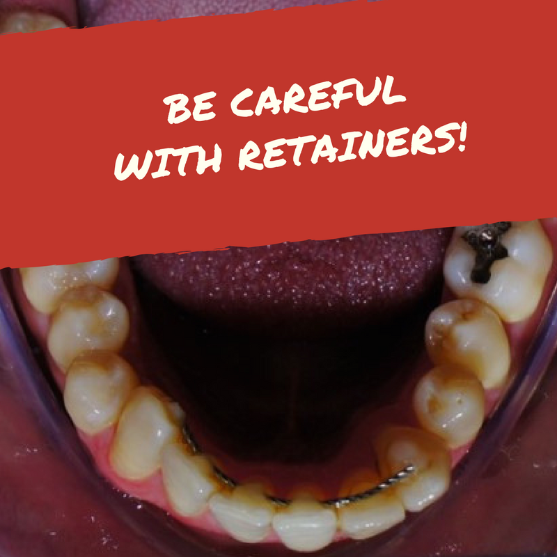 Be Careful with Retainers