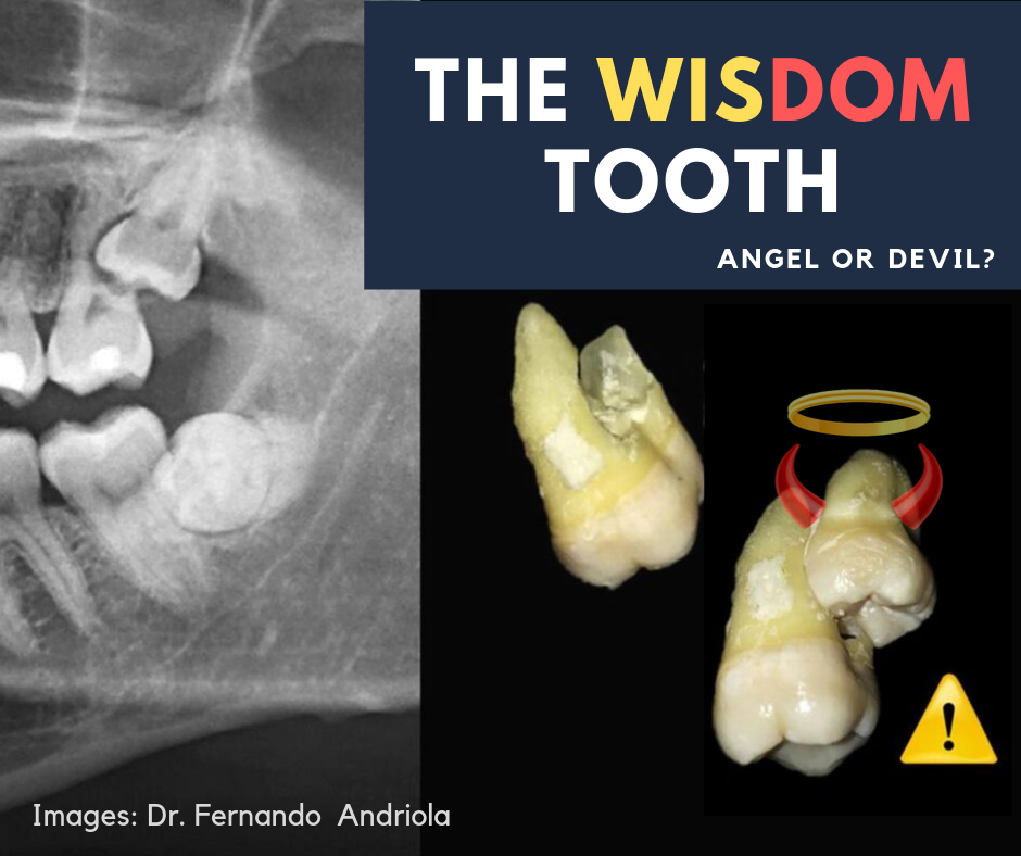 The Wisdom Tooth – Angel or Devil?